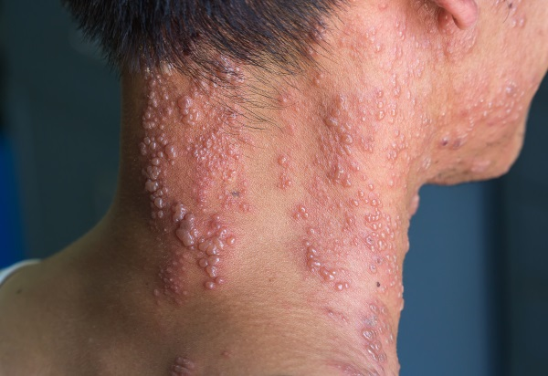 Gürtelrose oder Herpes Zoster – Eine unterschätzte Virusform