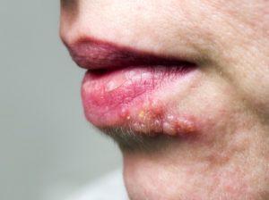 Lippenherpes – das bekannteste Herpesvirus
