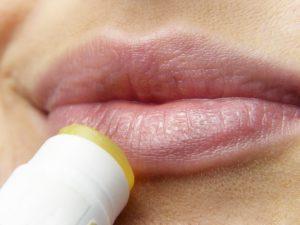 Lippenpflege im Kampf gegen Herpes