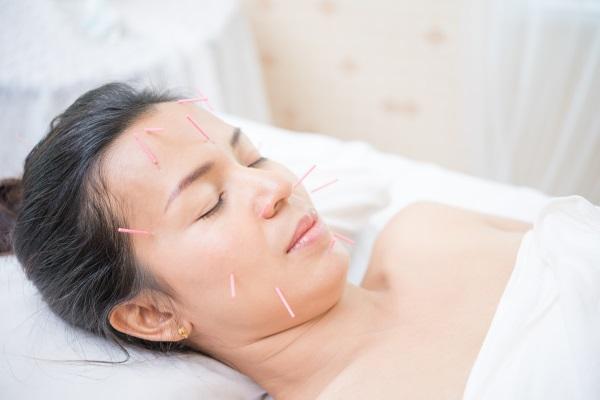 Akupunktur und Herpes
