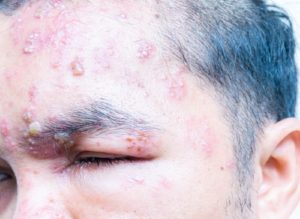 Gesichtsherpes